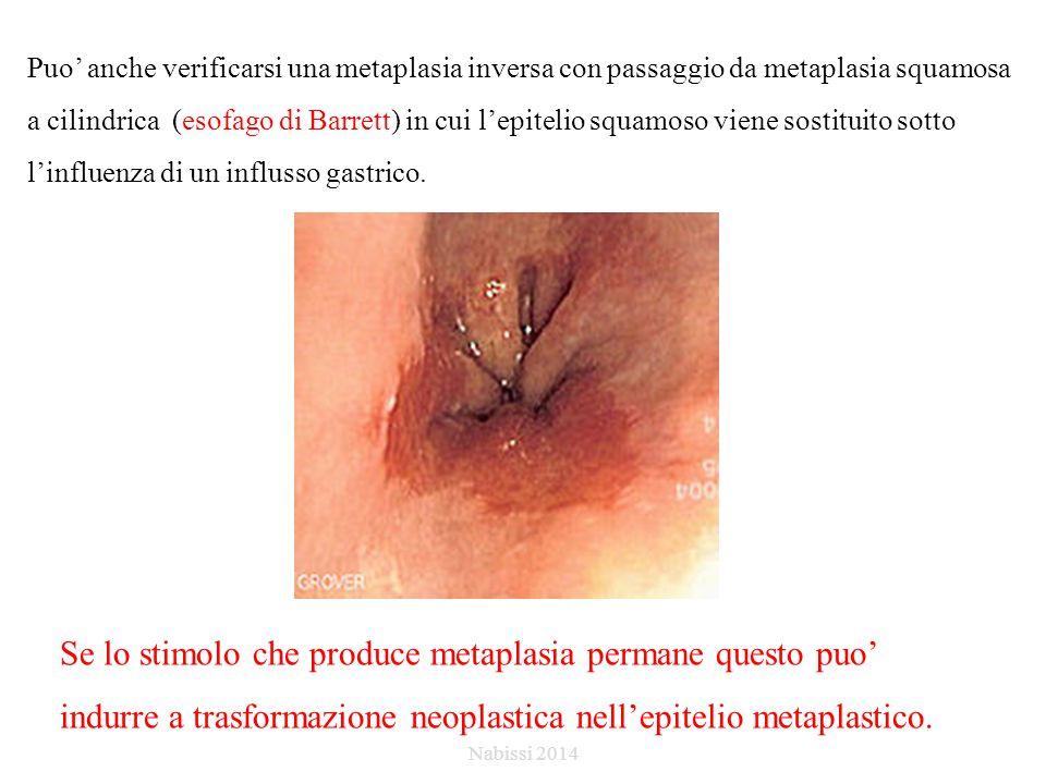 Puo' anche verificarsi una metaplasia inversa con passaggio da metaplasia squamosa a cilindrica (esofago di Barrett) in cui l'epitelio squamoso viene