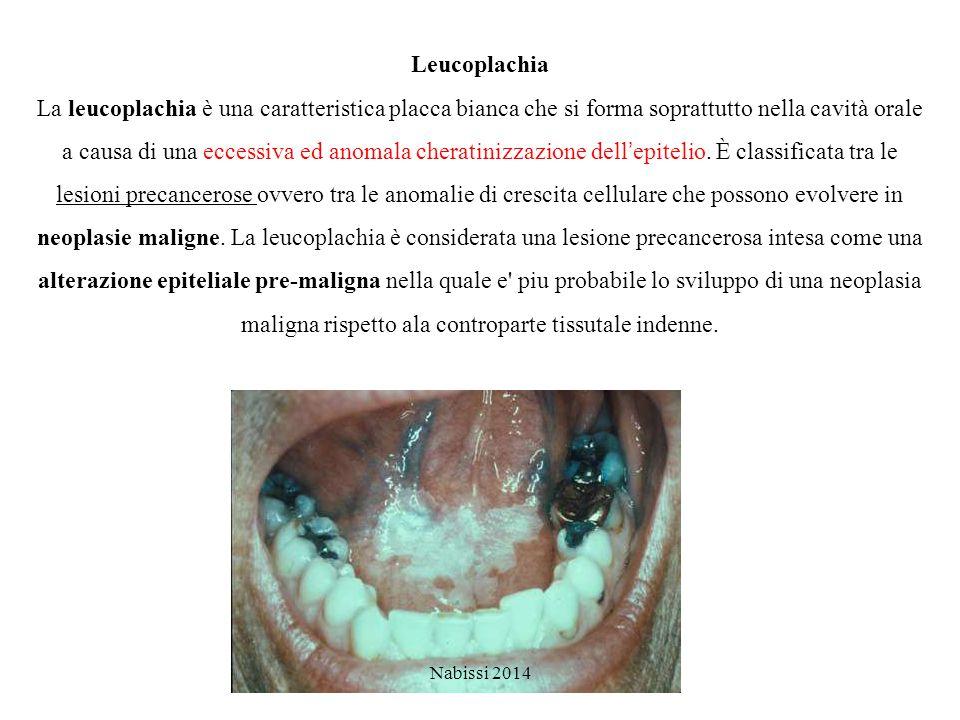 Leucoplachia La leucoplachia è una caratteristica placca bianca che si forma soprattutto nella cavità orale a causa di una eccessiva ed anomala cherat