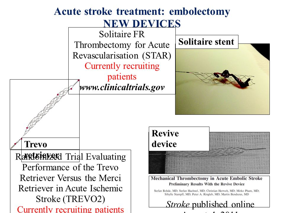 Acute stroke treatment: embolectomy NEW DEVICES Solitaire stent Randomized Trial Evaluating Performance of the Trevo Retriever Versus the Merci Retriever in Acute Ischemic Stroke (TREVO2) Currently recruiting patients www.clinicaltrials.gov Trevo retriever Revive device Solitaire FR Thrombectomy for Acute Revascularisation (STAR) Currently recruiting patients www.clinicaltrials.gov Stroke published online August 4, 2011