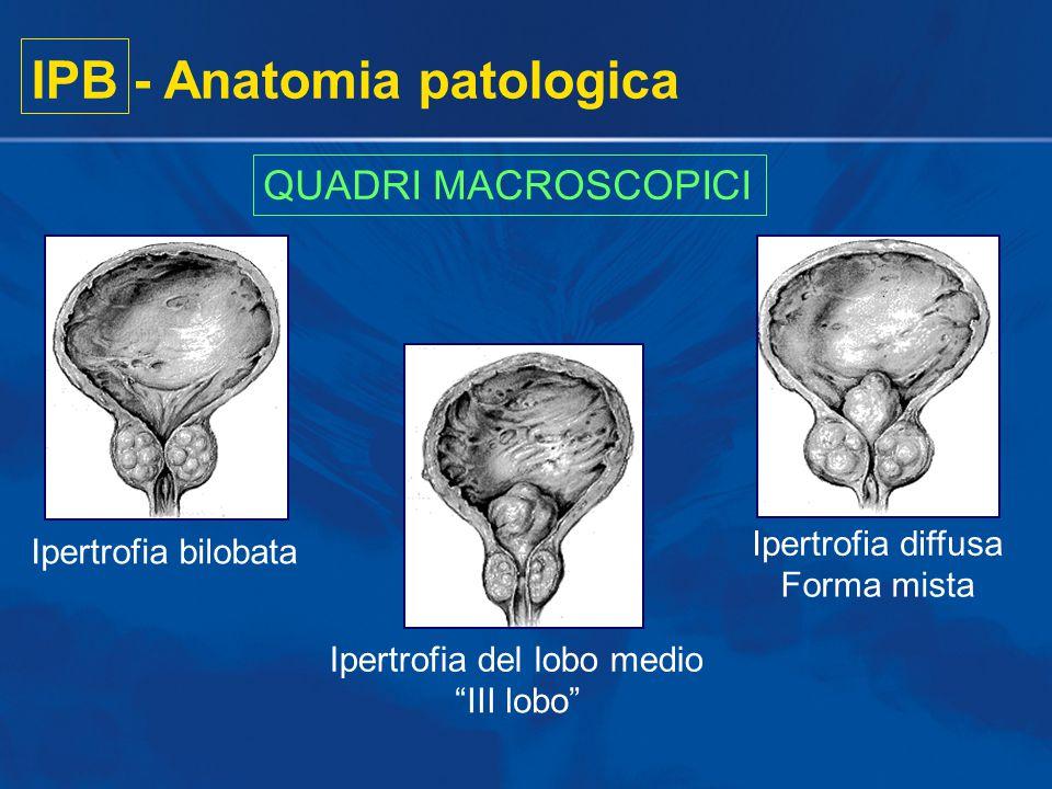 "IPB - Anatomia patologica QUADRI MACROSCOPICI Ipertrofia bilobata Ipertrofia del lobo medio ""III lobo"" Ipertrofia diffusa Forma mista"