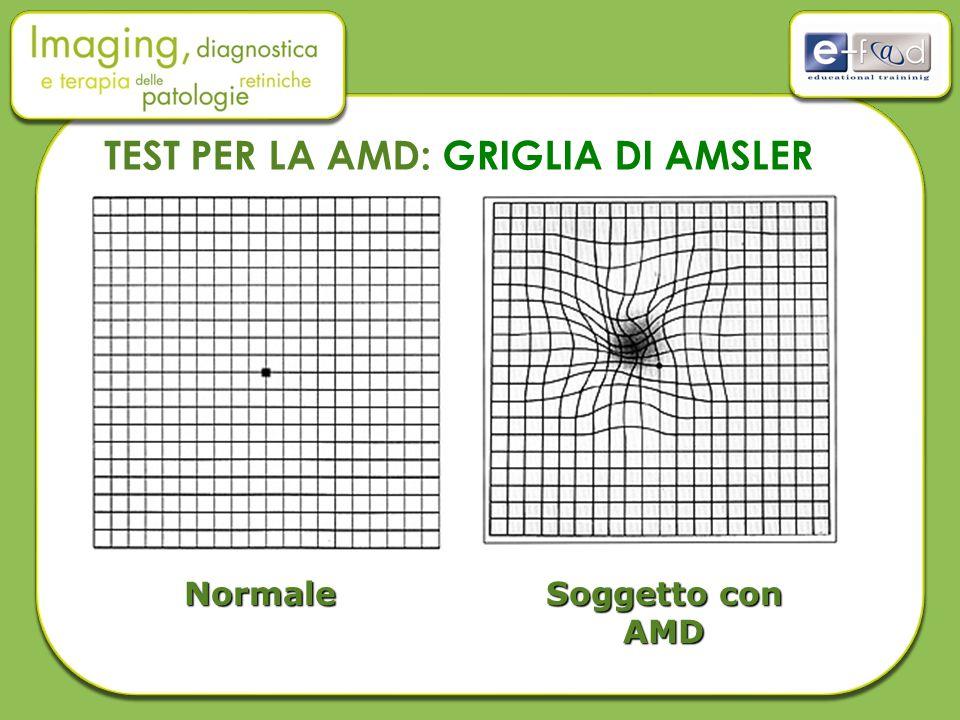 Normale Soggetto con AMD TEST PER LA AMD: GRIGLIA DI AMSLER