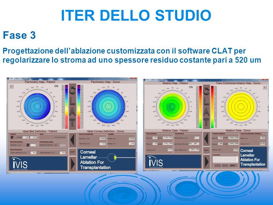 Fase 3 Progettazione dell'ablazione customizzata con il software CLAT per regolarizzare lo stroma ad uno spessore residuo costante pari a 520 um ITER