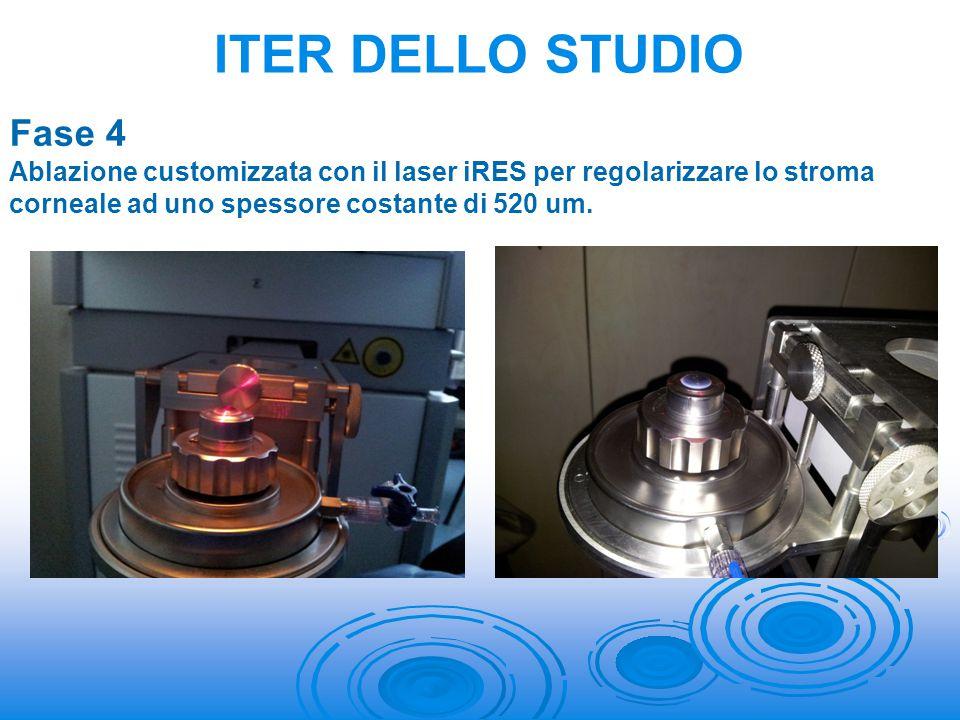 Fase 4 Ablazione customizzata con il laser iRES per regolarizzare lo stroma corneale ad uno spessore costante di 520 um. ITER DELLO STUDIO