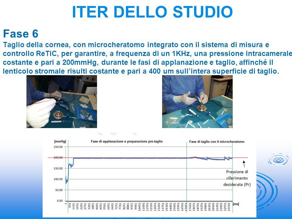 Fase 6 Taglio della cornea, con microcheratomo integrato con il sistema di misura e controllo ReTiC, per garantire, a frequenza di un 1KHz, una pressi