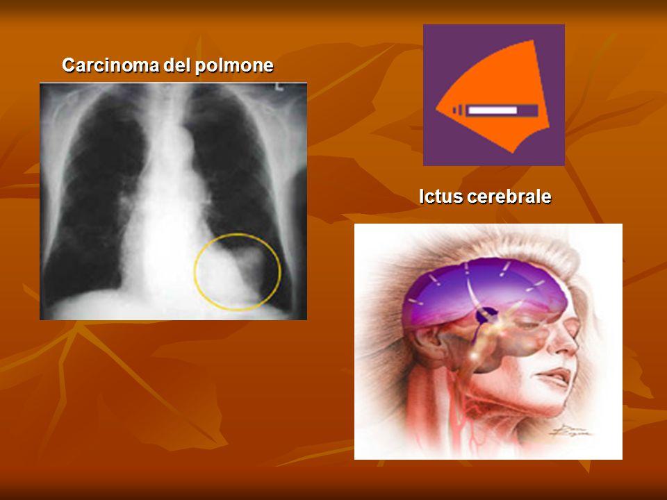 Carcinoma del polmone Ictus cerebrale