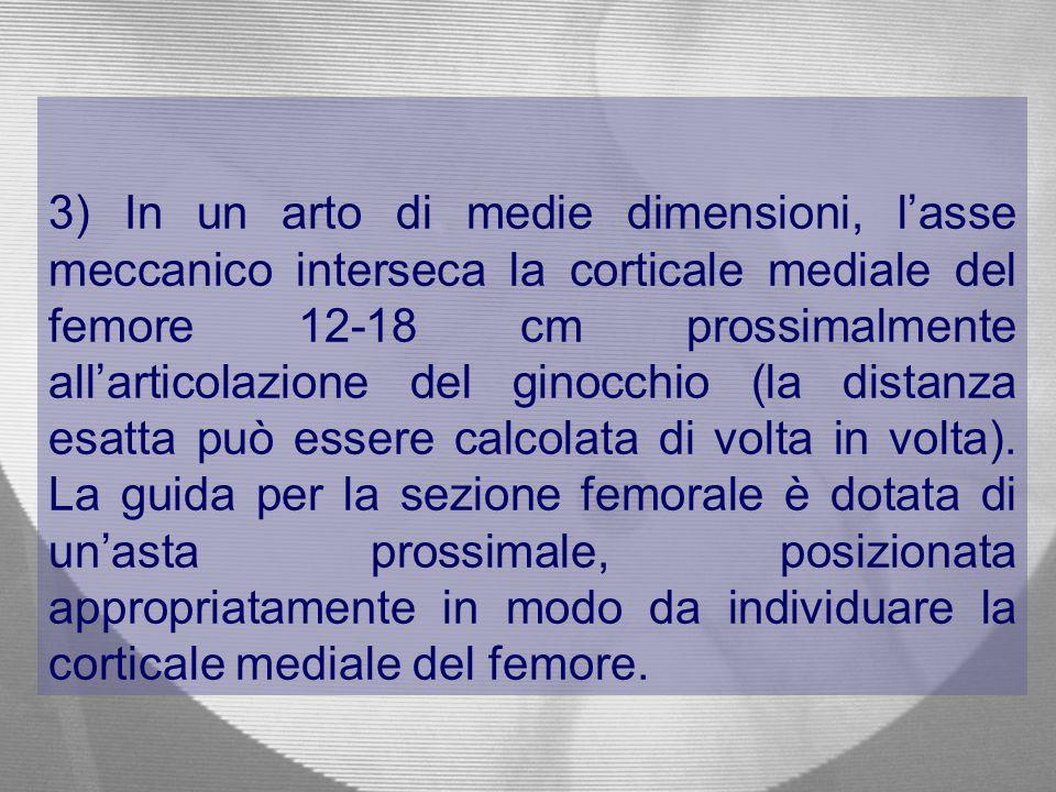 3) In un arto di medie dimensioni, l'asse meccanico interseca la corticale mediale del femore 12-18 cm prossimalmente all'articolazione del ginocchio