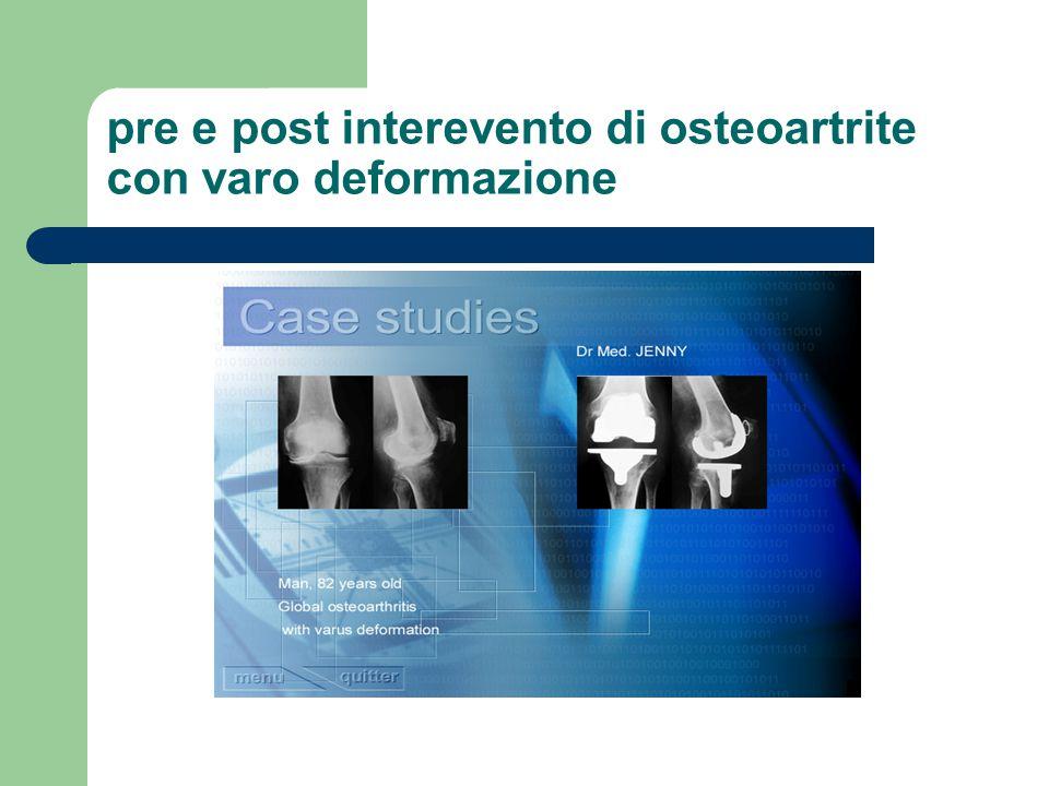 Nel ginocchio, un errore di 5° è importante ed uno di 10° può risultare catastrofico.