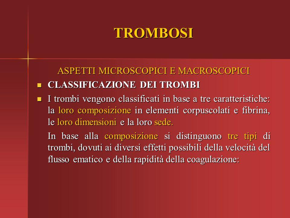 TROMBOSI ASPETTI MICROSCOPICI E MACROSCOPICI CLASSIFICAZIONE DEI TROMBI CLASSIFICAZIONE DEI TROMBI I trombi vengono classificati in base a tre caratte