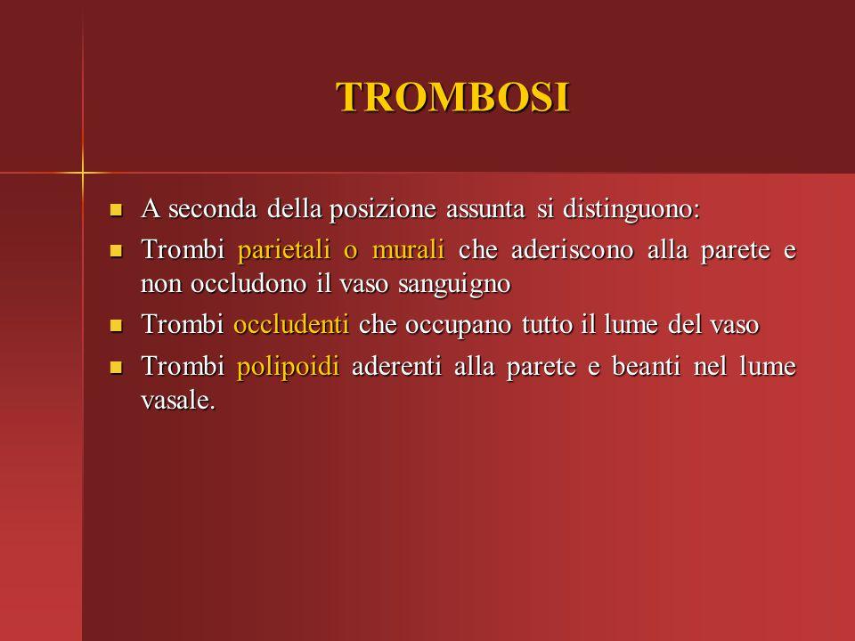 TROMBOSI A seconda della posizione assunta si distinguono: A seconda della posizione assunta si distinguono: Trombi parietali o murali che aderiscono