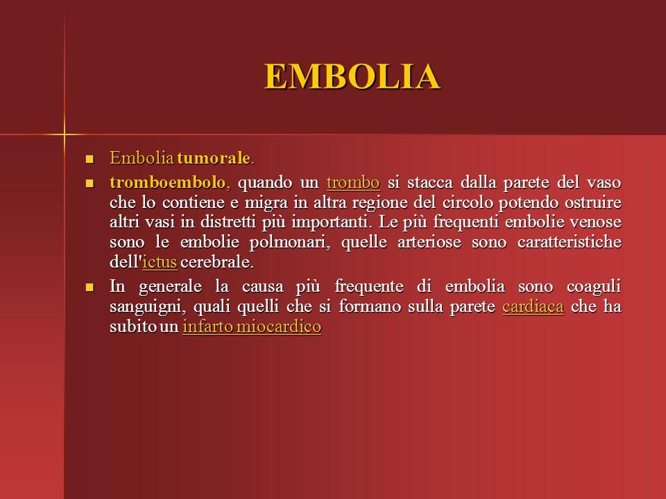 EMBOLIA Embolia tumorale. Embolia tumorale. tromboembolo, quando un trombo si stacca dalla parete del vaso che lo contiene e migra in altra regione de