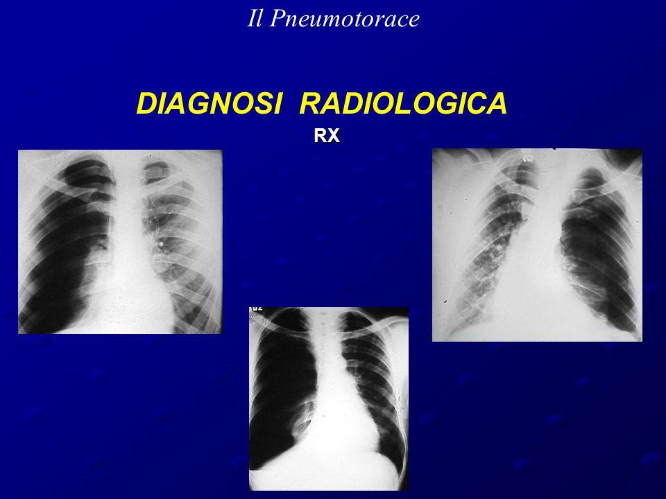 Il Pneumotorace DIAGNOSI RADIOLOGICA RX RX