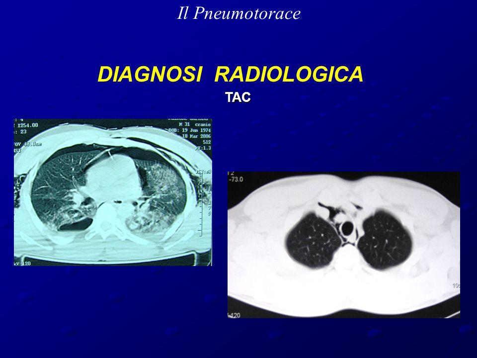Il Pneumotorace DIAGNOSI RADIOLOGICA TAC TAC
