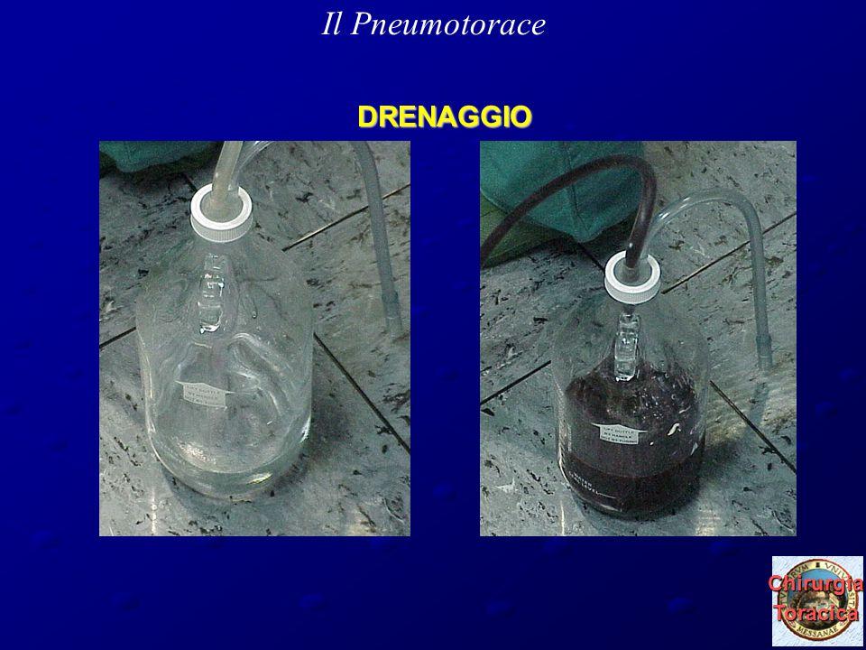 29 marzo 2010 ChirurgiaToracica DRENAGGIO