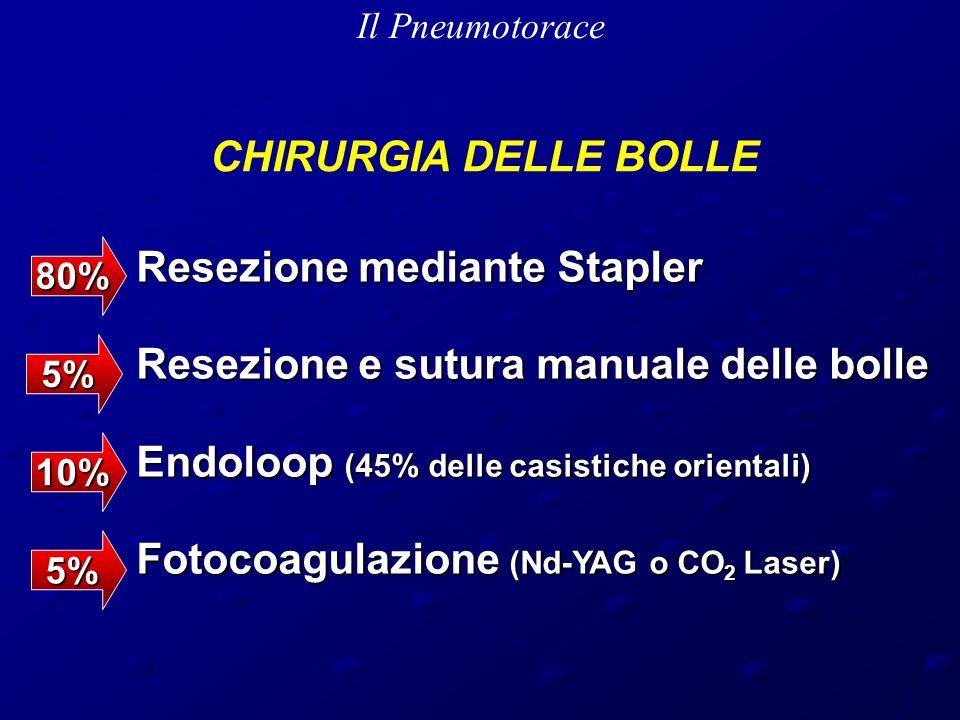Il Pneumotorace Resezione mediante Stapler Resezione mediante Stapler Resezione e sutura manuale delle bolle Resezione e sutura manuale delle bolle Endoloop (45% delle casistiche orientali) Endoloop (45% delle casistiche orientali) Fotocoagulazione (Nd-YAG o CO 2 Laser) Fotocoagulazione (Nd-YAG o CO 2 Laser) 80% 10% 5% 5% CHIRURGIA DELLE BOLLE