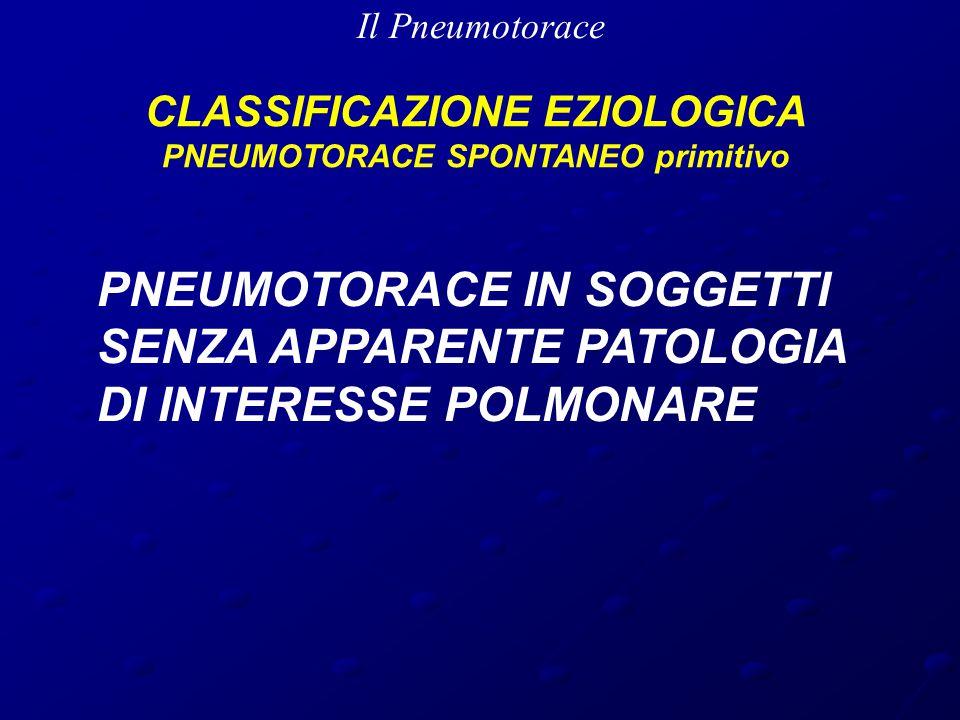 Il Pneumotorace CLASSIFICAZIONE EZIOLOGICA PNEUMOTORACE SPONTANEO secondario CLASSIFICAZIONE EZIOLOGICA PNEUMOTORACE SPONTANEO secondario MALATTIE DELLE VIE AEREE COPD Fibrosi cistica Asma bronchiale MALATTIE INFETTIVE Pneumocystis carinii Polmonite necrotizzante TubercolosiNEOPLASIE Ca Broncogeno MTS polmonari MALATTIE INTERSTIZIALI Sarcoidosi Fibrosi polmonare idiopatica Linfangioleiomiomatosi Sclerosi tuberosa CONNETTIVITI Artrite reumatoide Spondilite anchilosante Sclerodermia Sindrome di Marfan Sindrome di Ehlers-Danlos ENDOMETRIOSI TORACICA