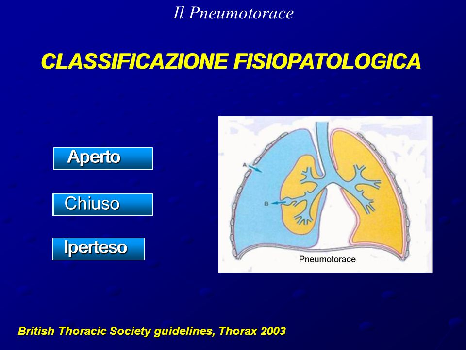 Il Pneumotorace British Thoracic Society guidelines, Thorax 2003 CLASSIFICAZIONE FISIOPATOLOGICA Aperto Aperto ChiusoIperteso CLASSIFICAZIONE FISIOPATOLOGICA Aperto Aperto ChiusoIperteso
