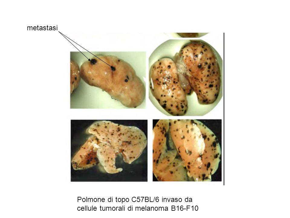 metastasi Polmone di topo C57BL/6 invaso da cellule tumorali di melanoma B16-F10