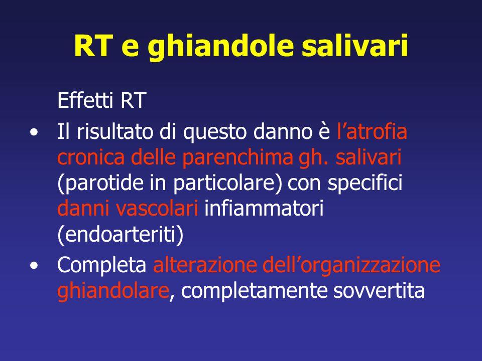 RT e ghiandole salivari Effetti RT Il risultato di questo danno è l'atrofia cronica delle parenchima gh. salivari (parotide in particolare) con specif