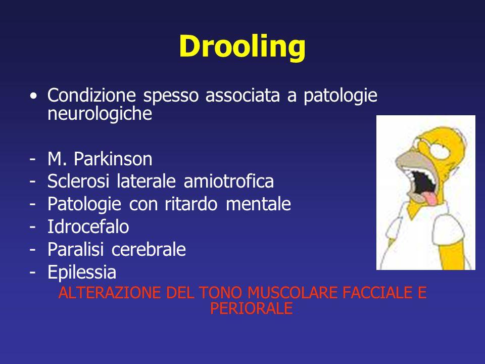Drooling Condizione spesso associata a patologie neurologiche -M. Parkinson -Sclerosi laterale amiotrofica -Patologie con ritardo mentale -Idrocefalo