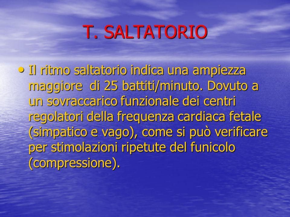 T. SALTATORIO Il ritmo saltatorio indica una ampiezza maggiore di 25 battiti/minuto. Dovuto a un sovraccarico funzionale dei centri regolatori della f