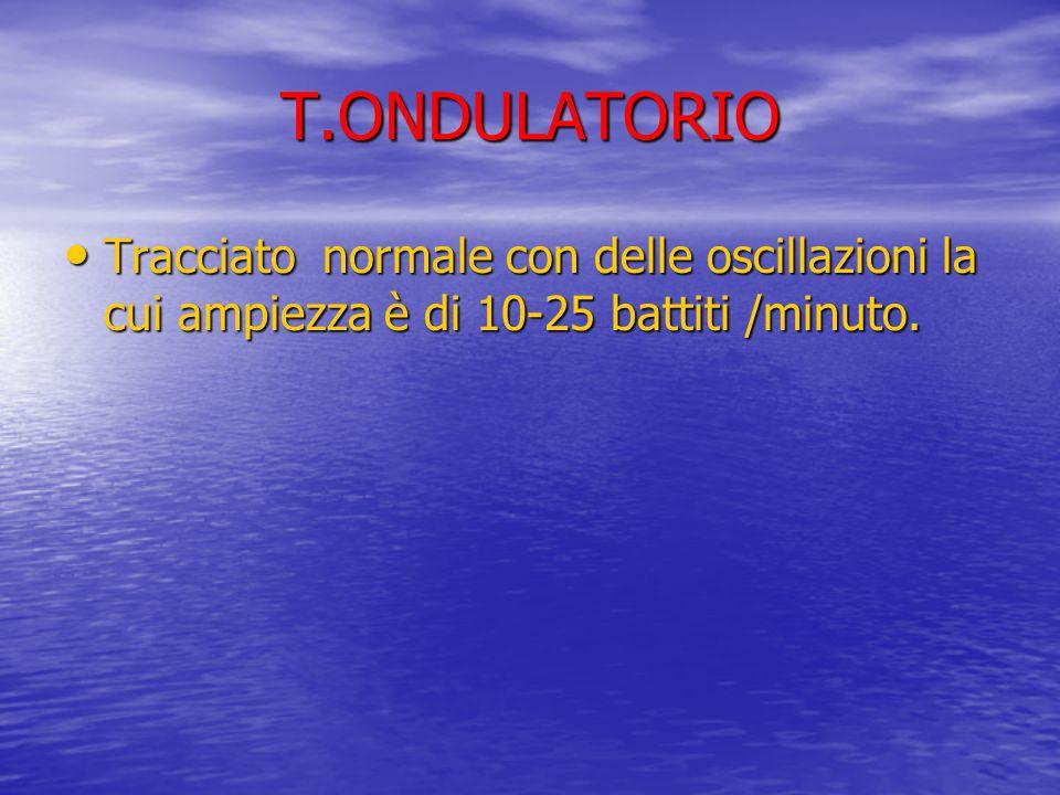 T.ONDULATORIO Tracciato normale con delle oscillazioni la cui ampiezza è di 10-25 battiti /minuto. Tracciato normale con delle oscillazioni la cui amp