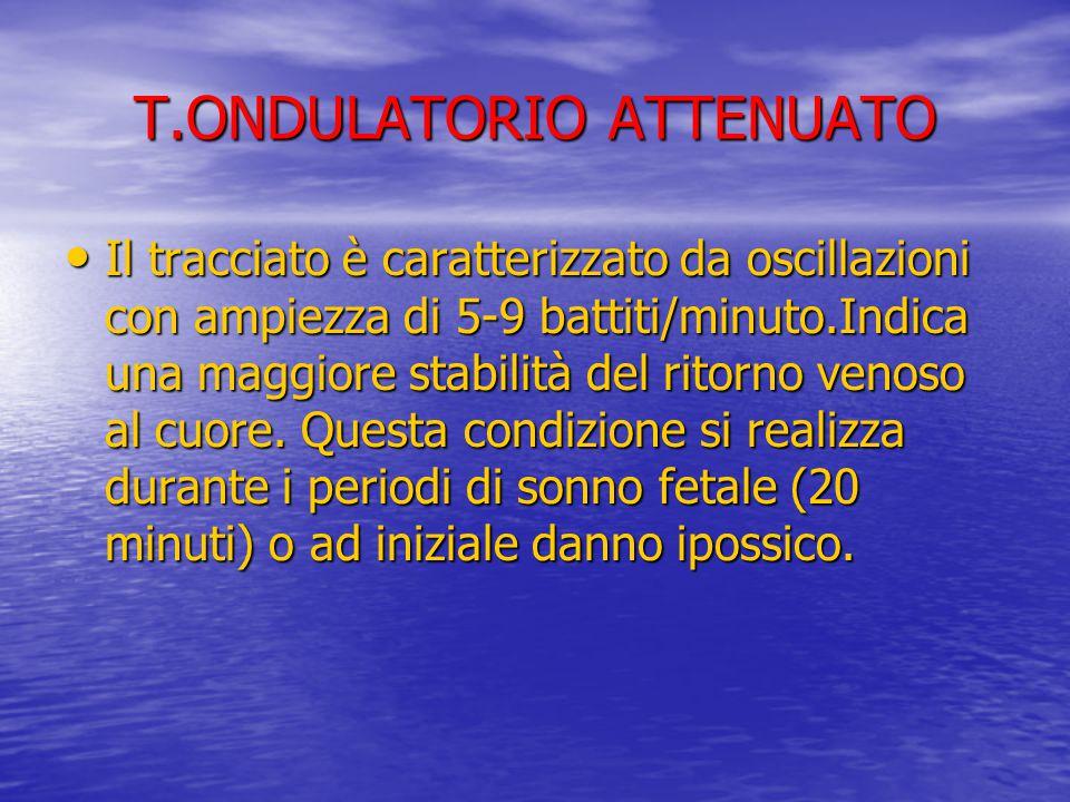 T.ONDULATORIO ATTENUATO Il tracciato è caratterizzato da oscillazioni con ampiezza di 5-9 battiti/minuto.Indica una maggiore stabilità del ritorno ven