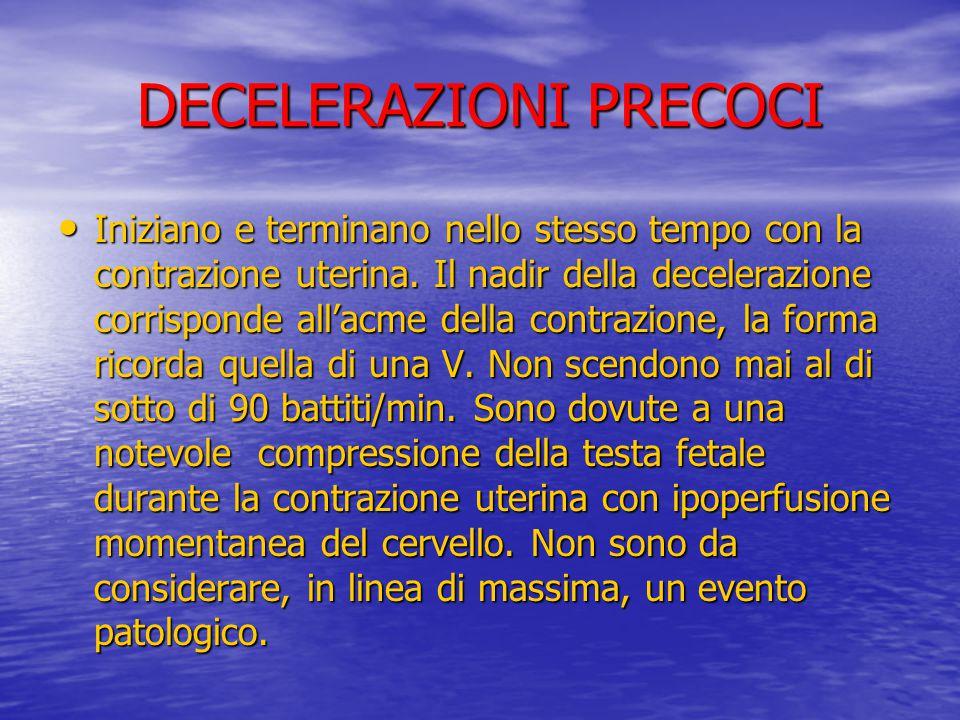 DECELERAZIONI PRECOCI Iniziano e terminano nello stesso tempo con la contrazione uterina. Il nadir della decelerazione corrisponde all'acme della cont