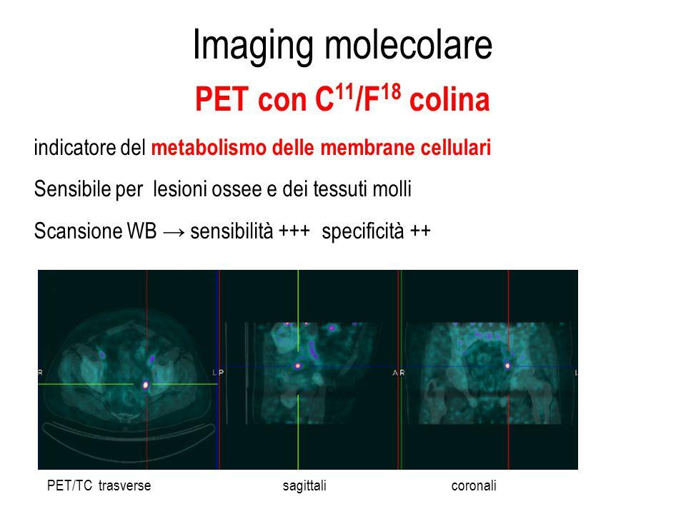 Imaging molecolare PET con C 11 /F 18 colina indicatore del metabolismo delle membrane cellulari Sensibile per lesioni ossee e dei tessuti molli Scans