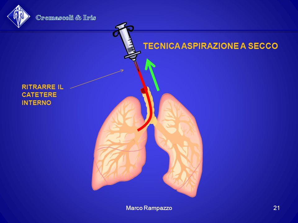 RITRARRE IL CATETERE INTERNO TECNICA ASPIRAZIONE A SECCO 21Marco Rampazzo