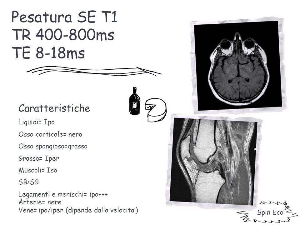Pesatura SE T1 TR 400-800ms TE 8-18ms Caratteristiche Liquidi= Ipo Osso corticale= nero Osso spongioso=grasso Grasso= Iper Muscoli= Iso SB>SG Legament