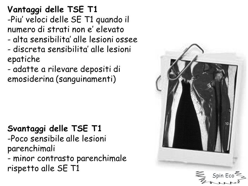 Vantaggi delle TSE T1 -Piu' veloci delle SE T1 quando il numero di strati non e' elevato - alta sensibilita' alle lesioni ossee - discreta sensibilita