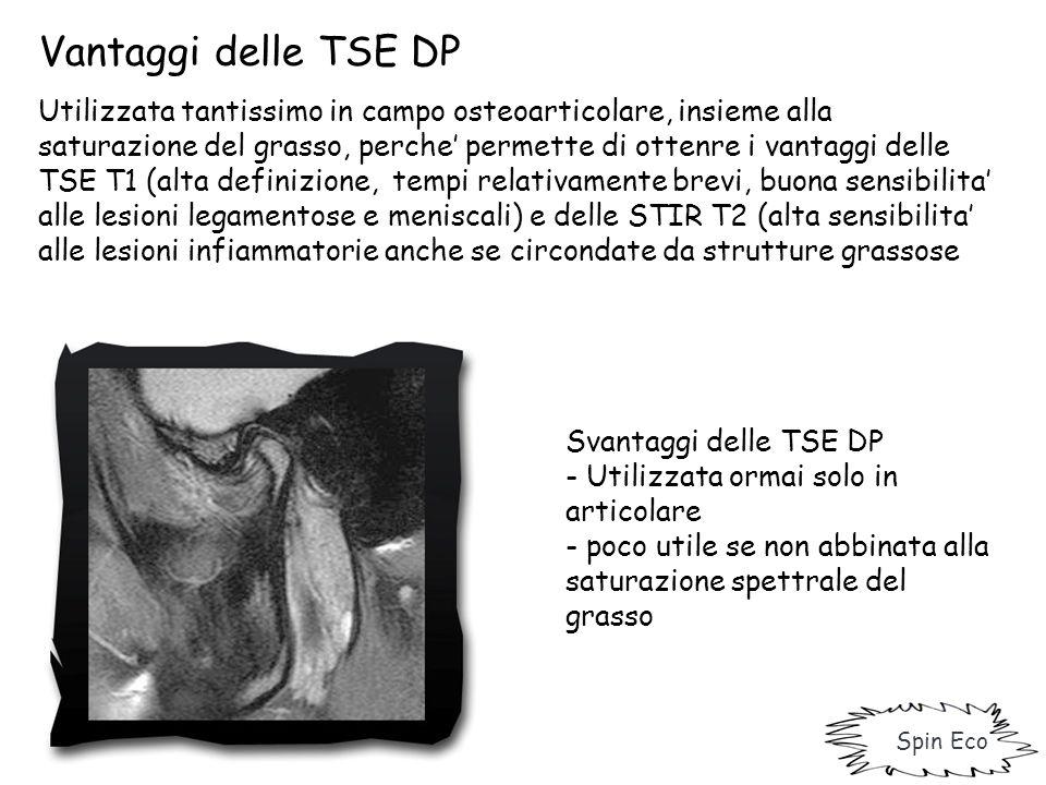 Spin Eco Vantaggi delle TSE DP Utilizzata tantissimo in campo osteoarticolare, insieme alla saturazione del grasso, perche' permette di ottenre i vant