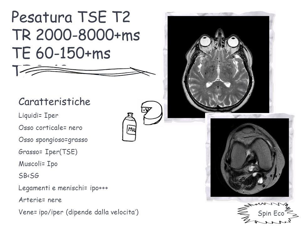 Pesatura TSE T2 TR 2000-8000+ms TE 60-150+ms TF 3-40 Caratteristiche Liquidi= Iper Osso corticale= nero Osso spongioso=grasso Grasso= Iper(TSE) Muscol
