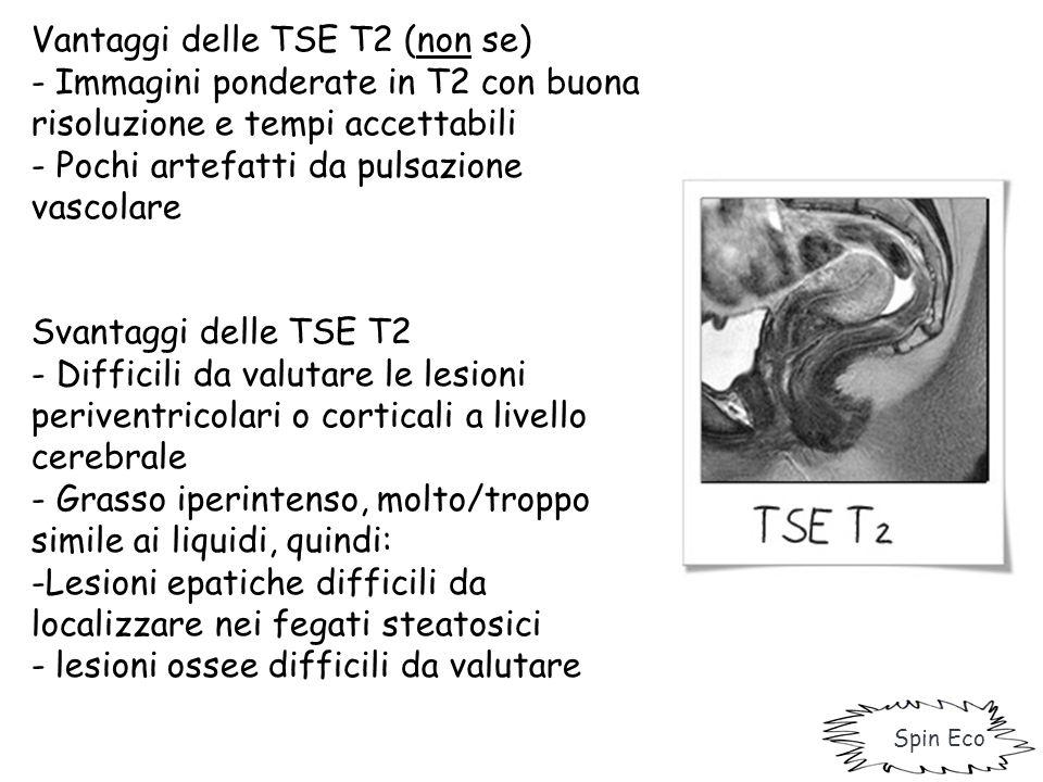 Vantaggi delle TSE T2 (non se) - Immagini ponderate in T2 con buona risoluzione e tempi accettabili - Pochi artefatti da pulsazione vascolare Svantagg