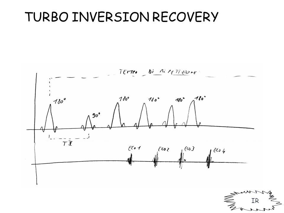 IR TURBO INVERSION RECOVERY