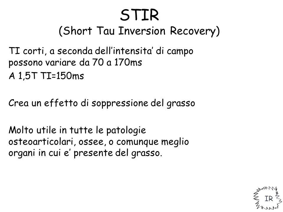 STIR (Short Tau Inversion Recovery) TI corti, a seconda dell'intensita' di campo possono variare da 70 a 170ms A 1,5T TI=150ms Crea un effetto di sopp