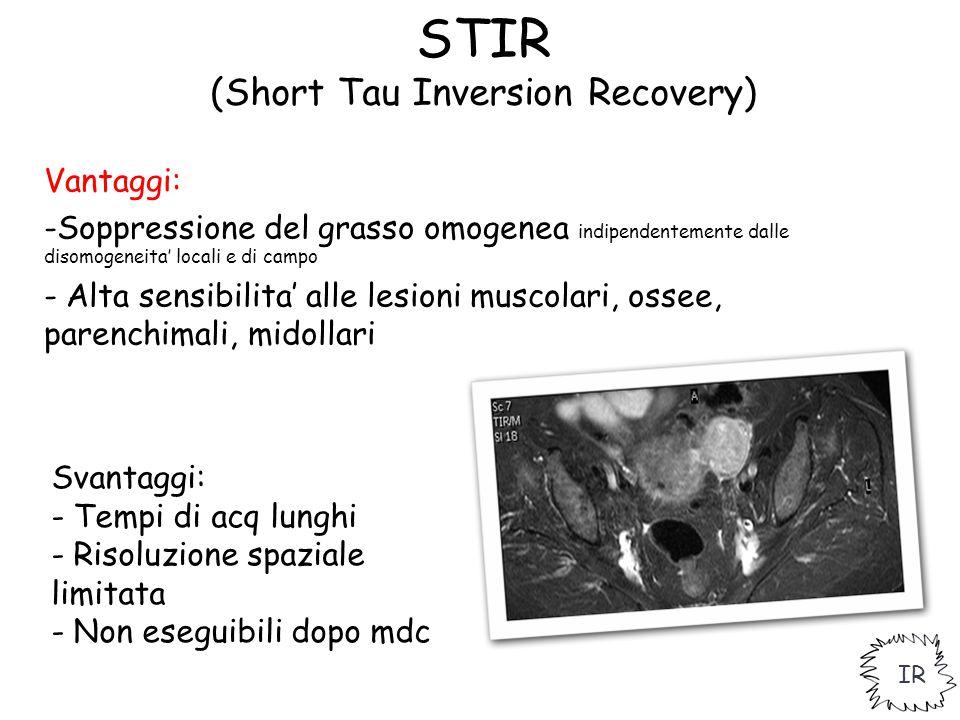 STIR (Short Tau Inversion Recovery) Vantaggi: -Soppressione del grasso omogenea indipendentemente dalle disomogeneita' locali e di campo - Alta sensib
