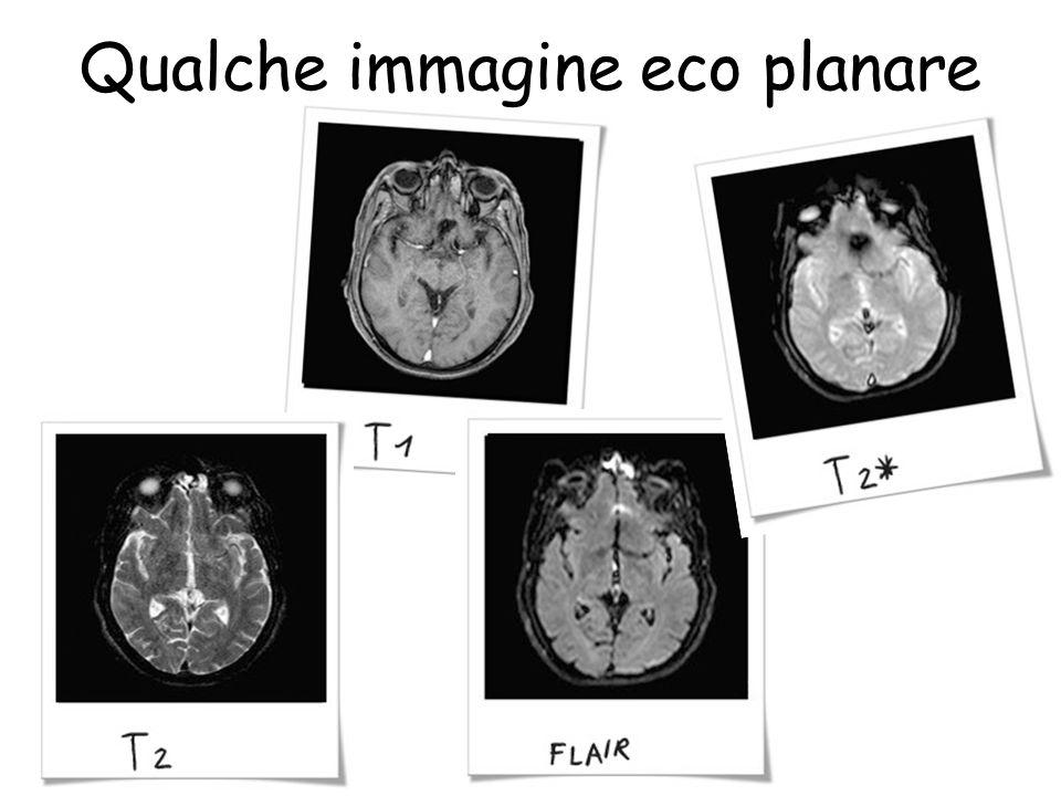 Qualche immagine eco planare