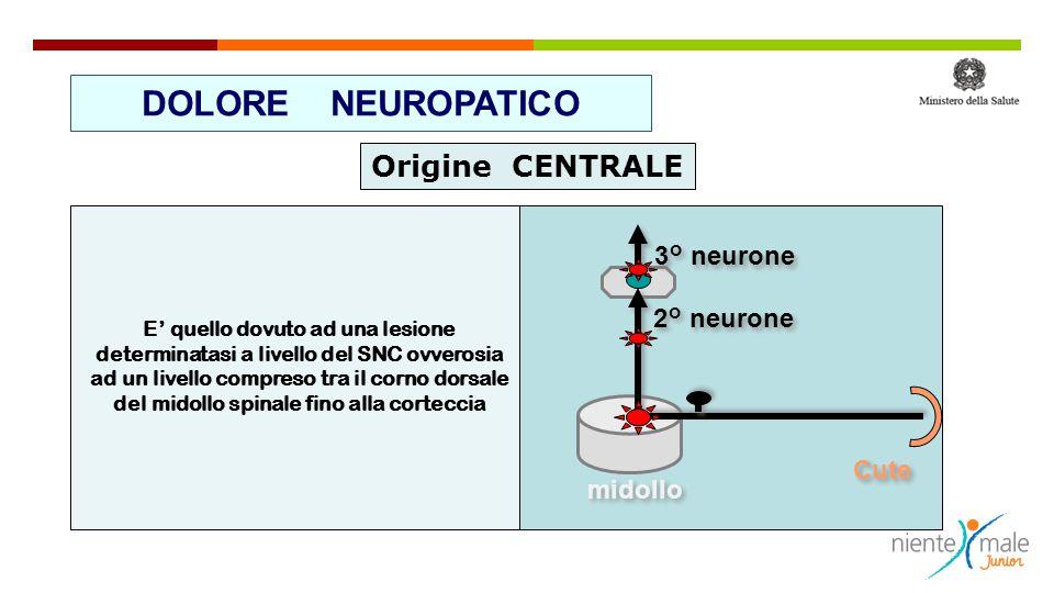 E' quello dovuto ad una lesione determinatasi a livello del SNC ovverosia ad un livello compreso tra il corno dorsale del midollo spinale fino alla co