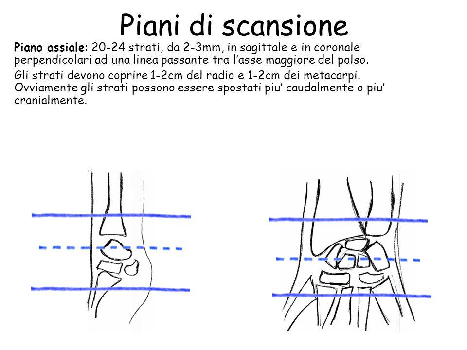 Piani di scansione Piano assiale: 20-24 strati, da 2-3mm, in sagittale e in coronale perpendicolari ad una linea passante tra l'asse maggiore del pols