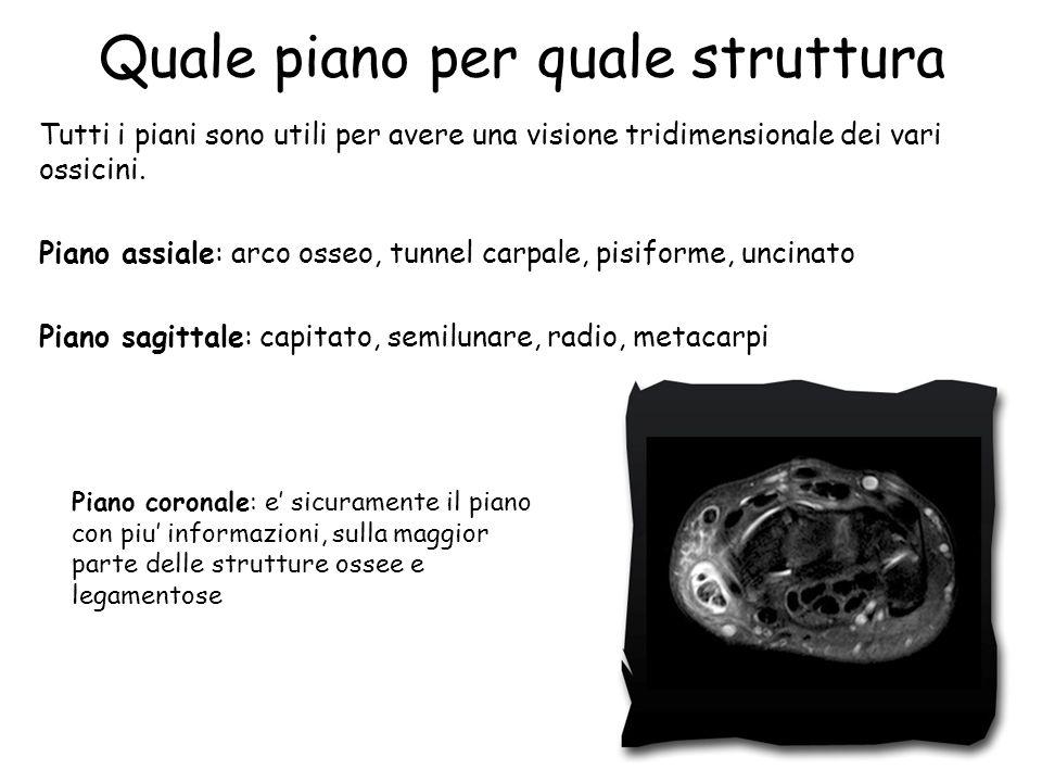 Quale piano per quale struttura Tutti i piani sono utili per avere una visione tridimensionale dei vari ossicini. Piano assiale: arco osseo, tunnel ca