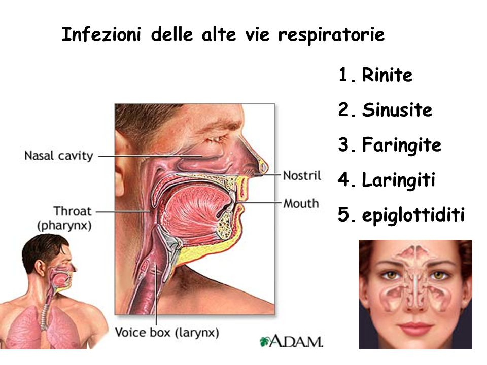 6 Infezioni delle alte vie respiratorie 1.Rinite 2.Sinusite 3.Faringite 4.Laringiti 5.epiglottiditi