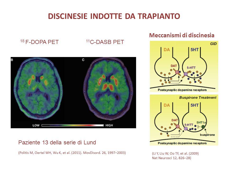 DISCINESIE INDOTTE DA TRAPIANTO Meccanismi di discinesia Paziente 13 della serie di Lund (Politis M, Oertel WH, Wu K, et al. (2011). MovDisord. 26, 19