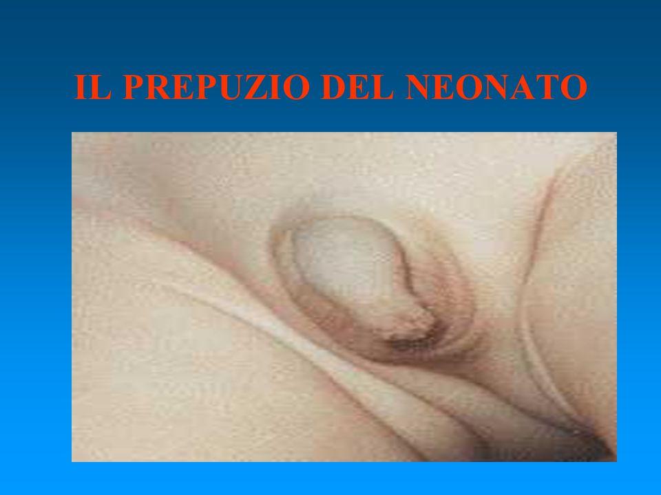 FISIOLOGIA DEL PREPUZIO –Separazione per processo di desquamazione tra 3 e 12 anni.
