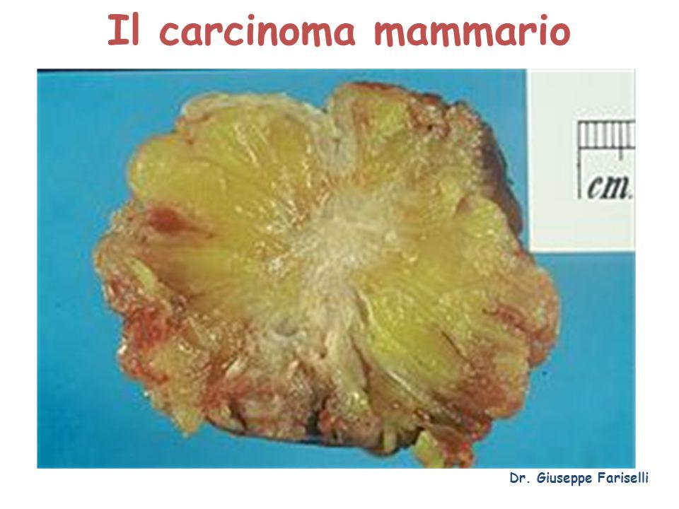 La storia naturale del carcinoma infiltrante Dr. Giuseppe Fariselli