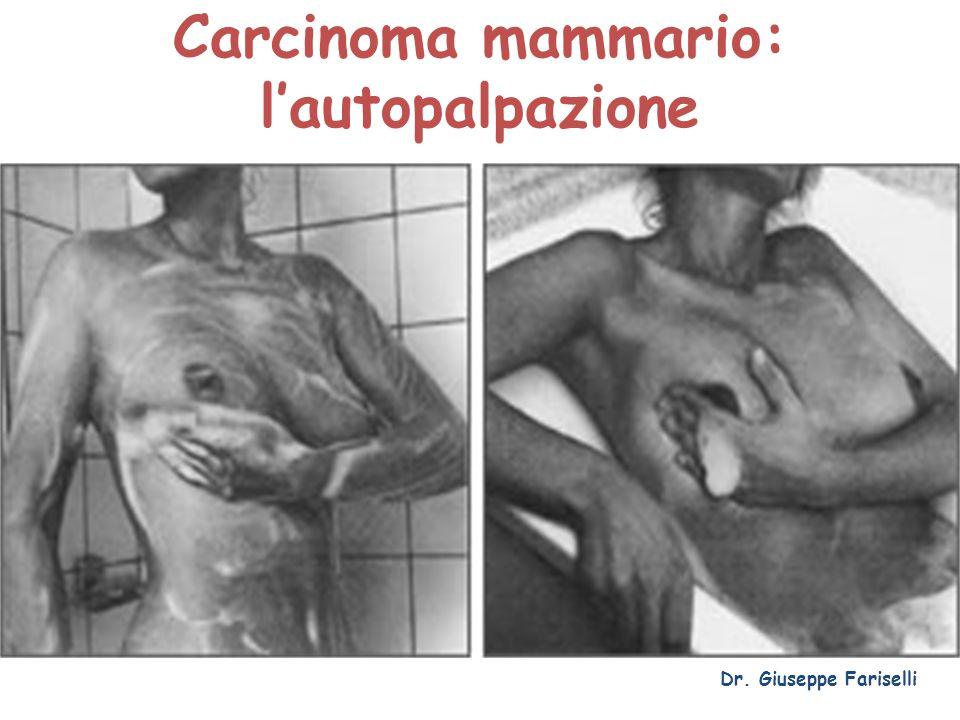 Carcinoma mammario: l'autopalpazione Dr. Giuseppe Fariselli