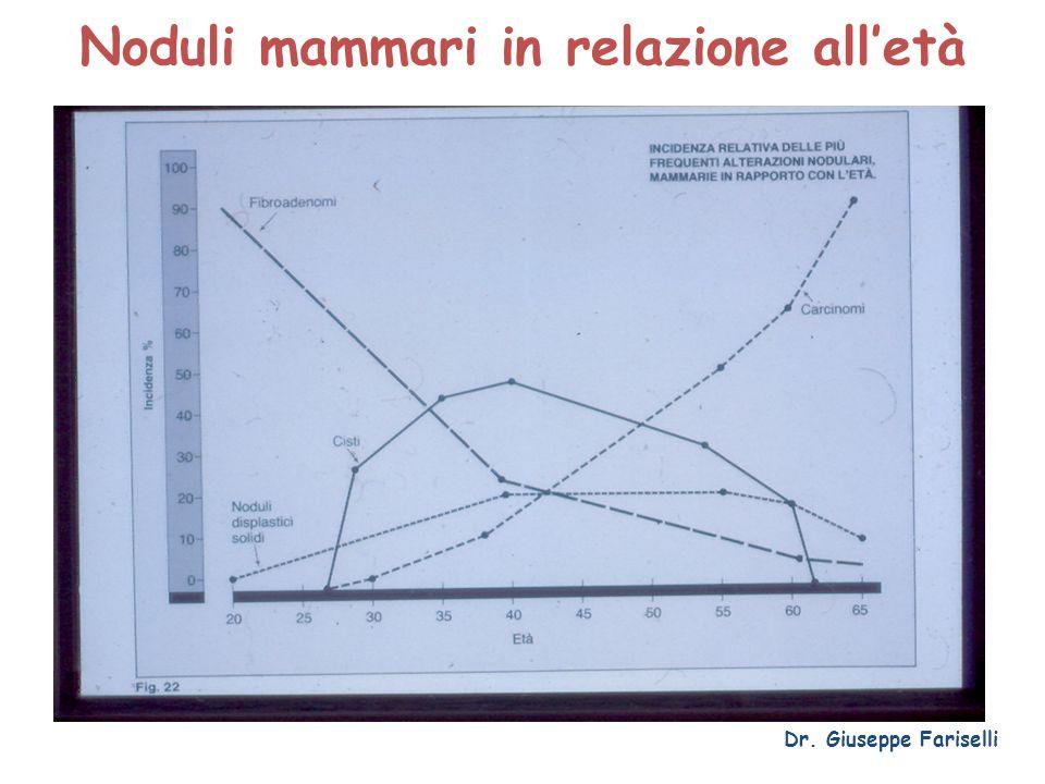 Noduli mammari in relazione all'età Dr. Giuseppe Fariselli