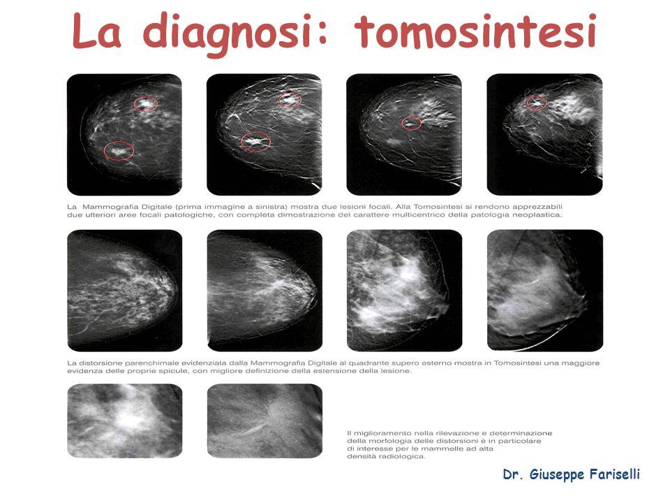 La diagnosi: tomosintesi Dr. Giuseppe Fariselli