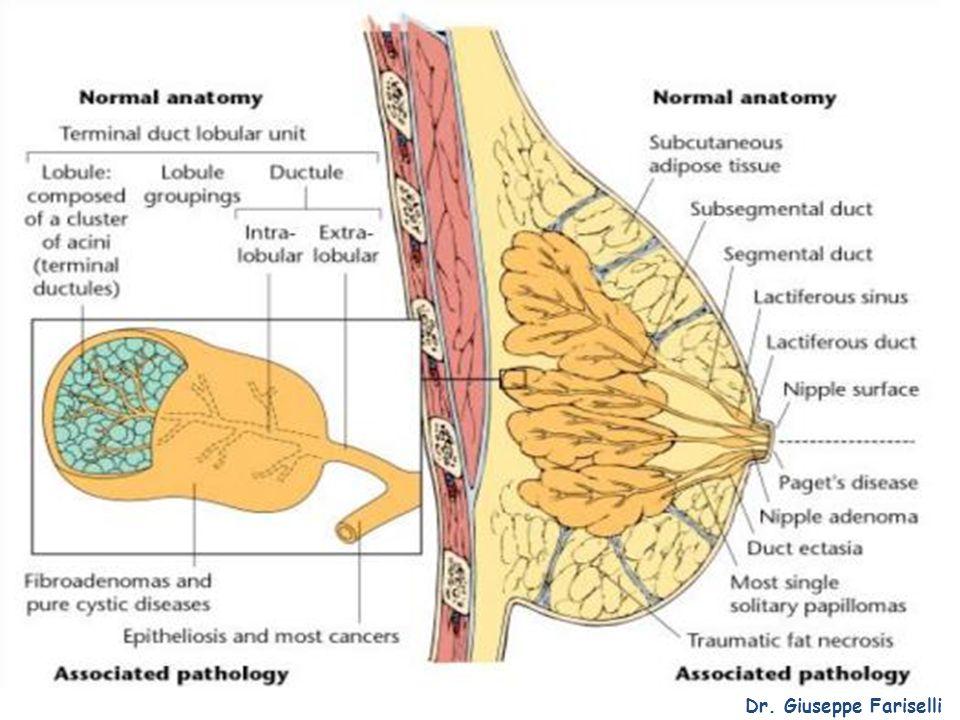 Il carcinoma mammario Gli effetti collaterali della radioterapia sono: Edema della mammella, flogosi mammaria, mastodinia Radiodermite Sarcomi mammari, leucemie, secondi tumori solidi (raro) Dr.