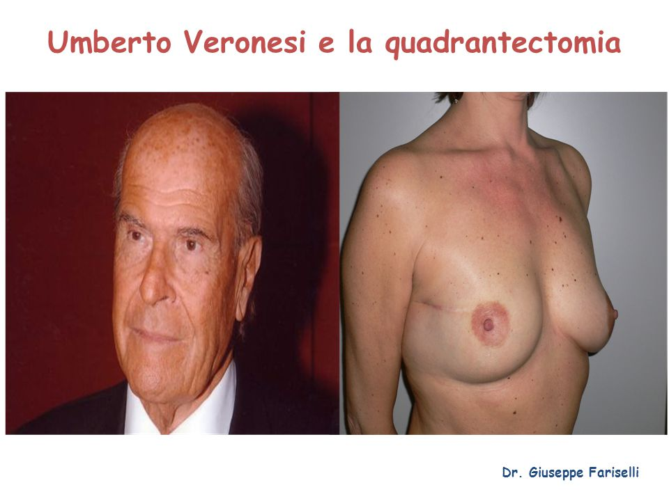 Umberto Veronesi e la quadrantectomia Dr. Giuseppe Fariselli